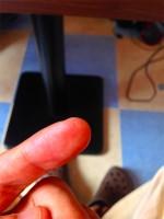 指に刺さっていた棘が月抜ける